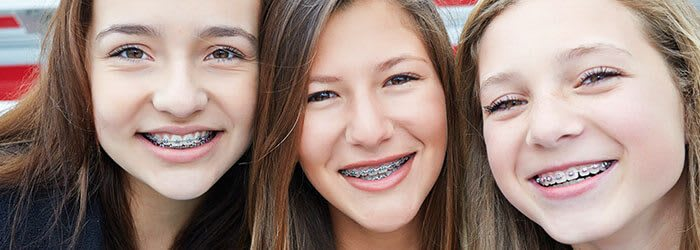 braces more affordable