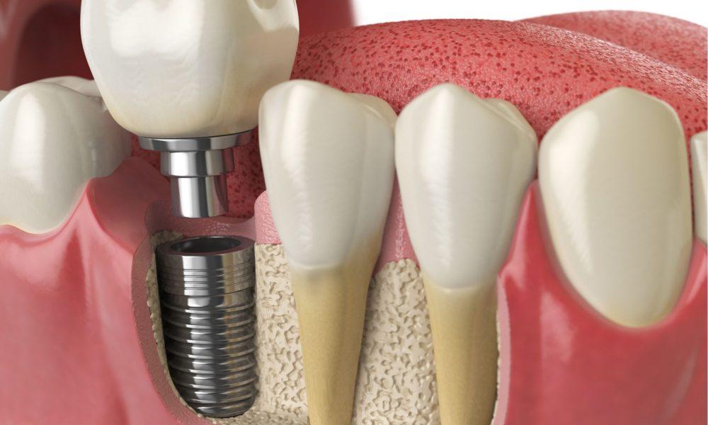 Dental Implants Near Me Cost