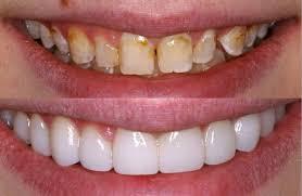Dental Veneers Cost Near Me